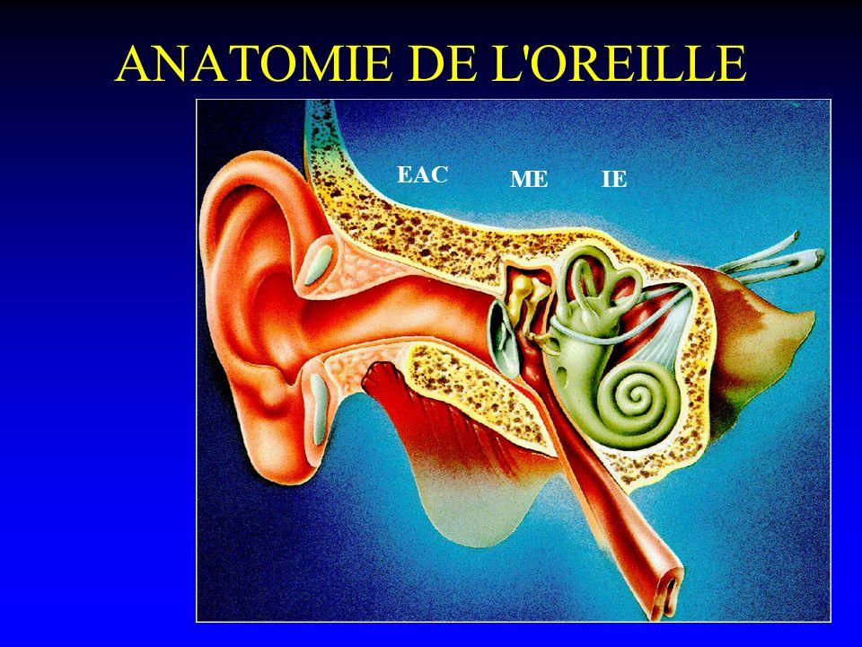 ANATOMIE DE L'OREILLE EAC ME IE