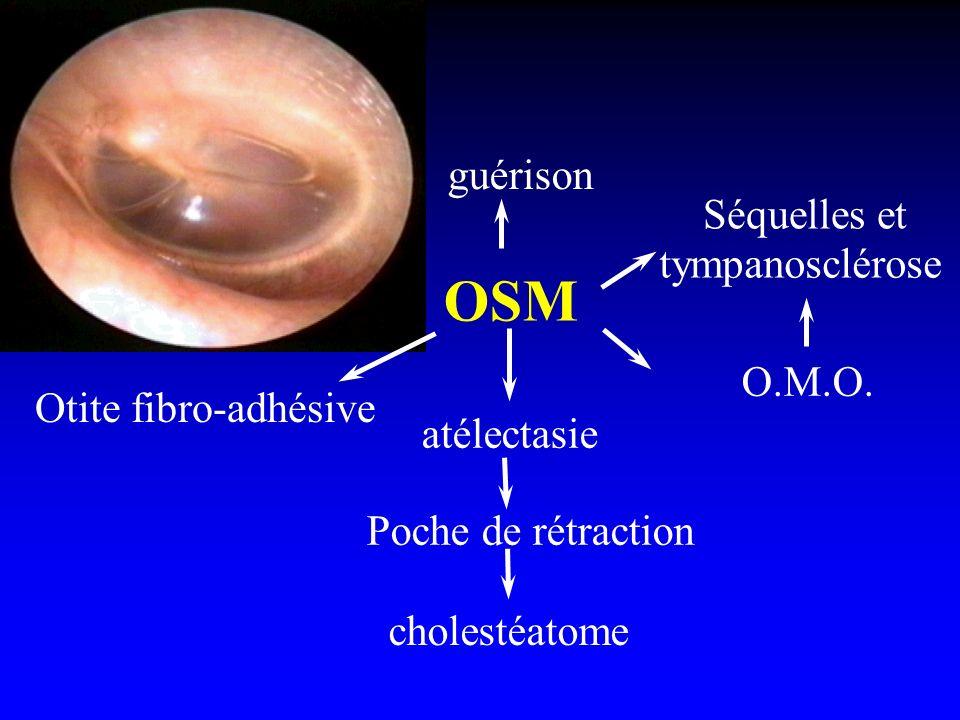 OSM guérison Otite fibro-adhésive atélectasie Poche de rétraction cholestéatome Séquelles et tympanosclérose O.M.O.