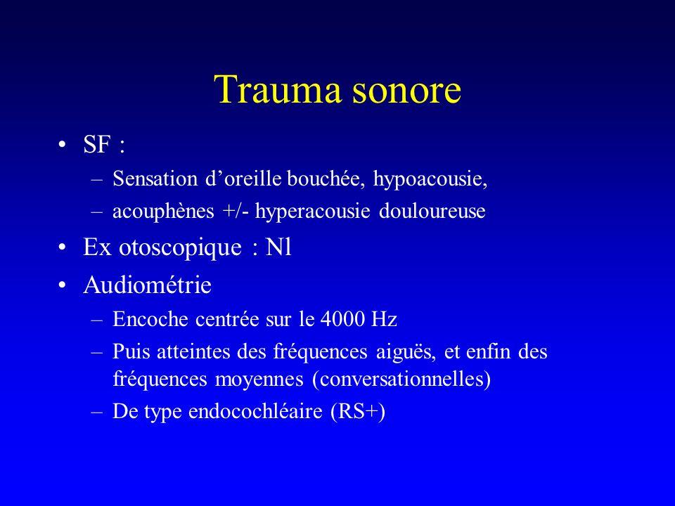 Trauma sonore SF : –Sensation doreille bouchée, hypoacousie, –acouphènes +/- hyperacousie douloureuse Ex otoscopique : Nl Audiométrie –Encoche centrée