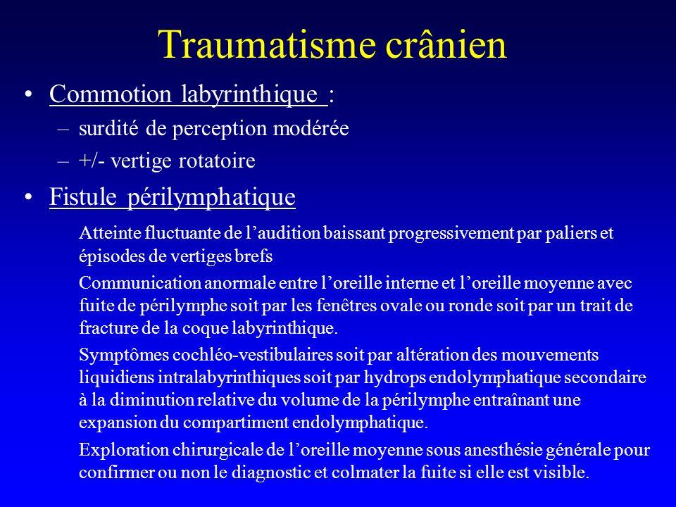 Traumatisme crânien Commotion labyrinthique : –surdité de perception modérée –+/- vertige rotatoire Fistule périlymphatique Atteinte fluctuante de lau