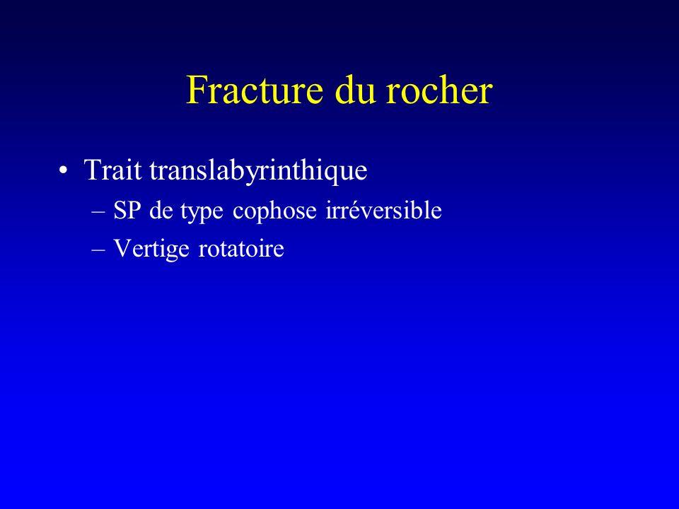 Fracture du rocher Trait translabyrinthique –SP de type cophose irréversible –Vertige rotatoire