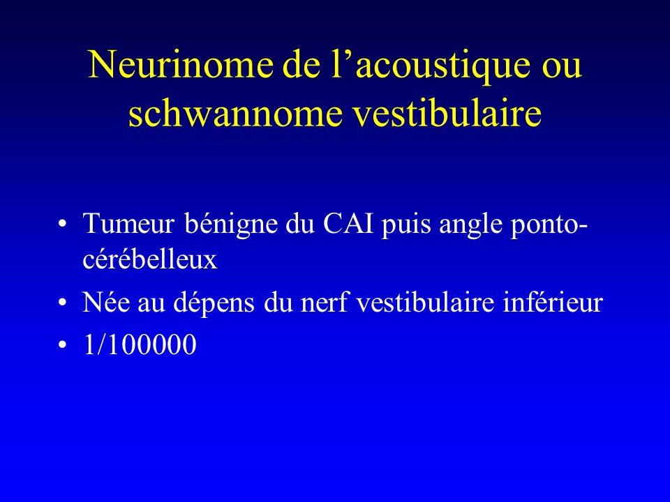 Neurinome de lacoustique ou schwannome vestibulaire Tumeur bénigne du CAI puis angle ponto- cérébelleux Née au dépens du nerf vestibulaire inférieur 1