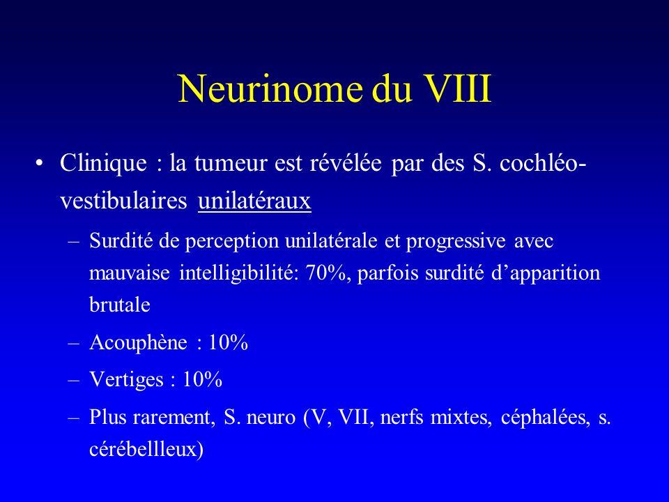 Neurinome du VIII Clinique : la tumeur est révélée par des S. cochléo- vestibulaires unilatéraux –Surdité de perception unilatérale et progressive ave