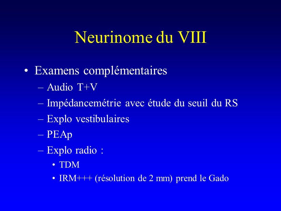 Neurinome du VIII Examens complémentaires –Audio T+V –Impédancemétrie avec étude du seuil du RS –Explo vestibulaires –PEAp –Explo radio : TDM IRM+++ (