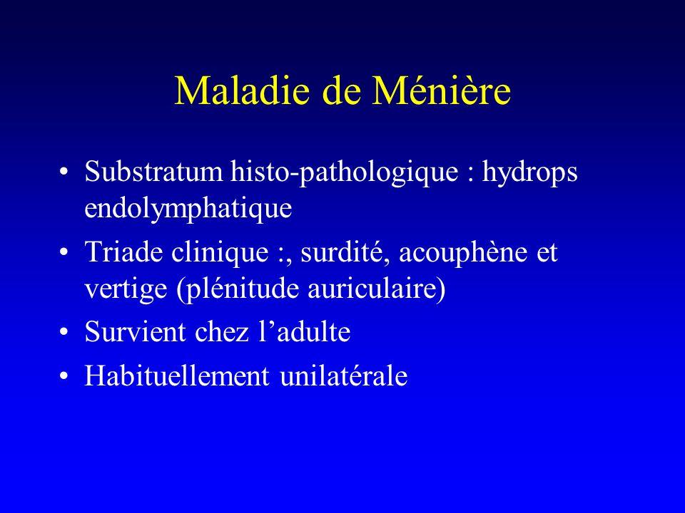 Maladie de Ménière Substratum histo-pathologique : hydrops endolymphatique Triade clinique :, surdité, acouphène et vertige (plénitude auriculaire) Su