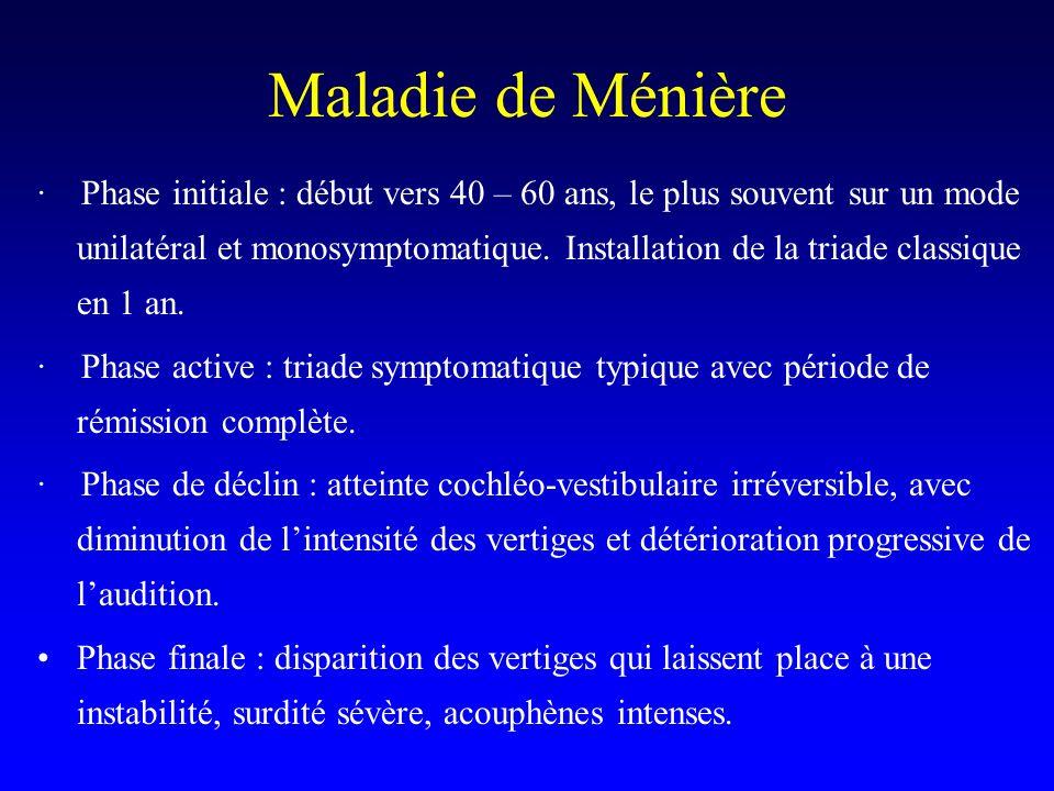 Maladie de Ménière · Phase initiale : début vers 40 – 60 ans, le plus souvent sur un mode unilatéral et monosymptomatique. Installation de la triade c