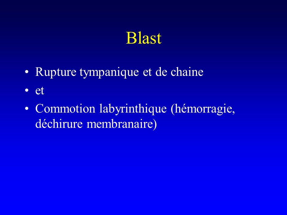 Blast Rupture tympanique et de chaine et Commotion labyrinthique (hémorragie, déchirure membranaire)