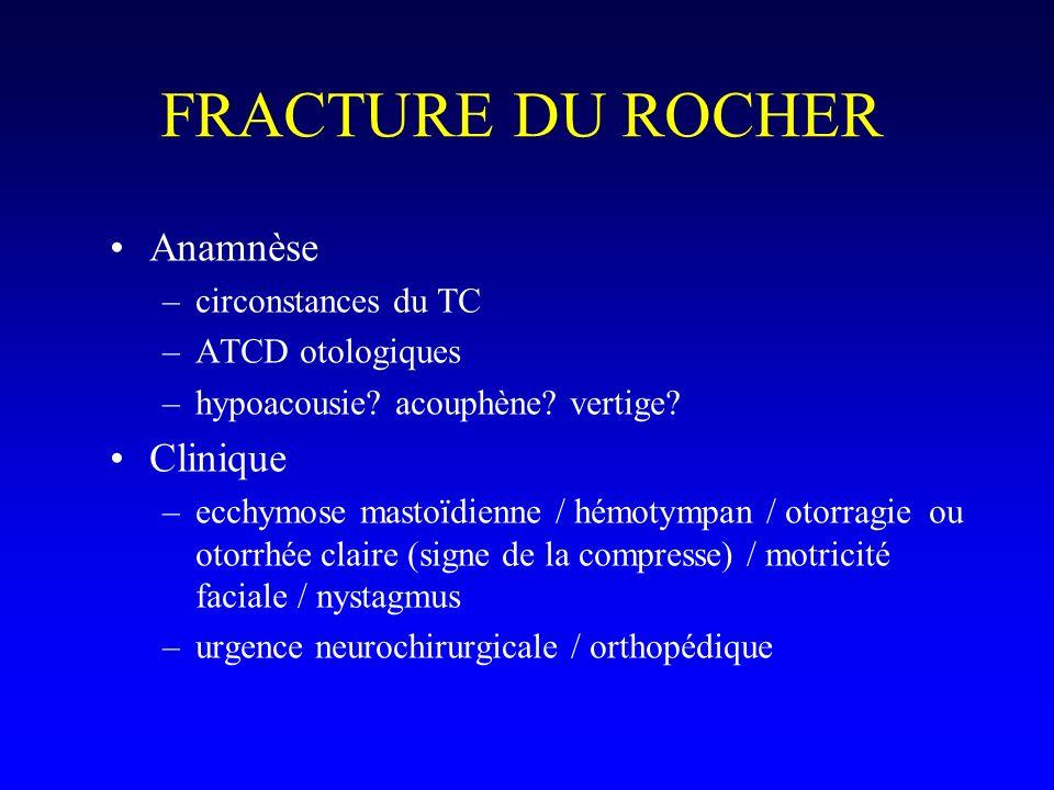 FRACTURE DU ROCHER Anamnèse –circonstances du TC –ATCD otologiques –hypoacousie? acouphène? vertige? Clinique –ecchymose mastoïdienne / hémotympan / o