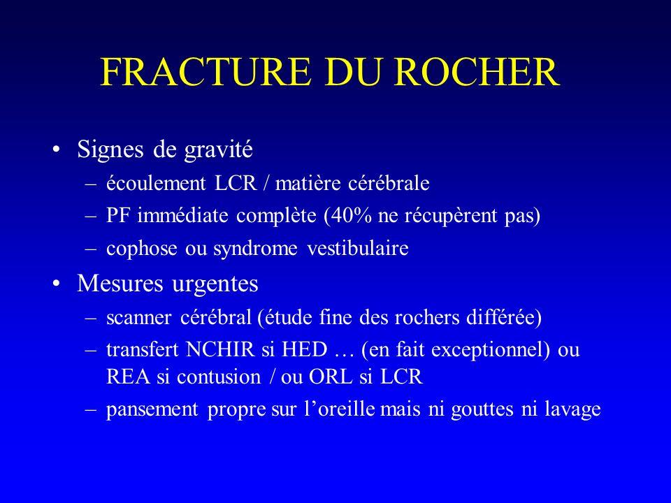 FRACTURE DU ROCHER Signes de gravité –écoulement LCR / matière cérébrale –PF immédiate complète (40% ne récupèrent pas) –cophose ou syndrome vestibula