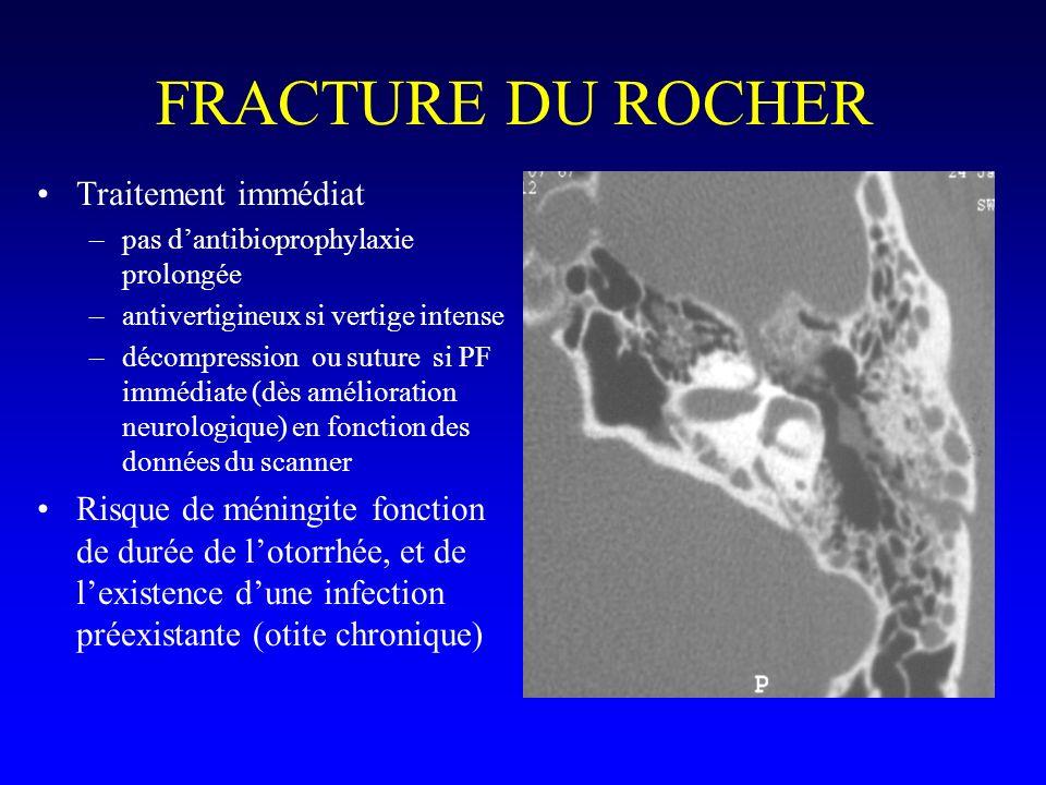 FRACTURE DU ROCHER Traitement immédiat –pas dantibioprophylaxie prolongée –antivertigineux si vertige intense –décompression ou suture si PF immédiate
