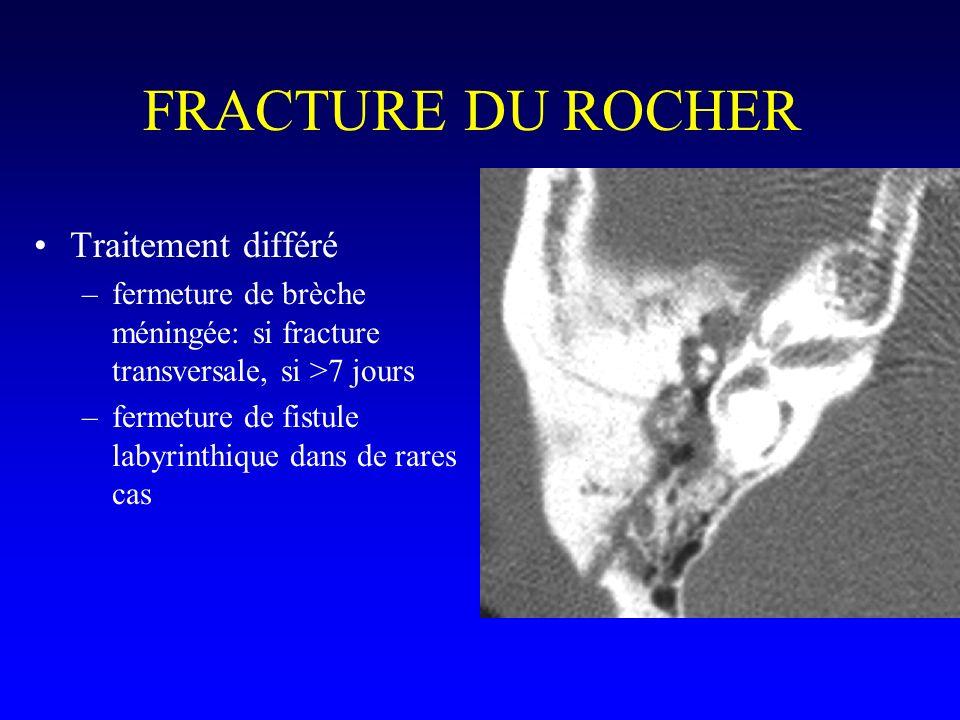 FRACTURE DU ROCHER Traitement différé –fermeture de brèche méningée: si fracture transversale, si >7 jours –fermeture de fistule labyrinthique dans de