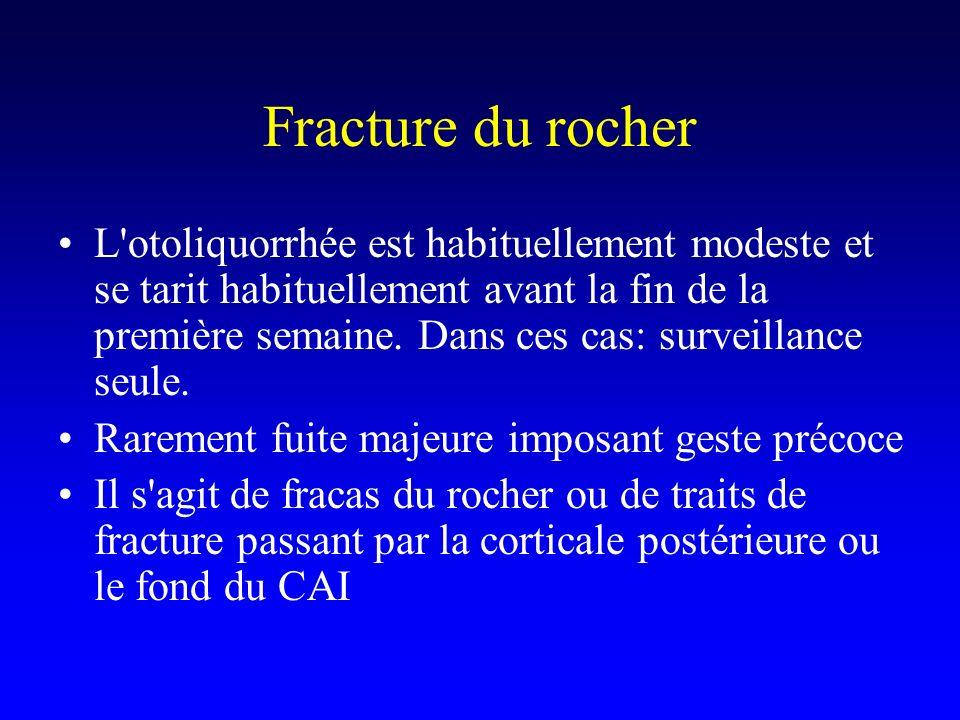 Fracture du rocher L'otoliquorrhée est habituellement modeste et se tarit habituellement avant la fin de la première semaine. Dans ces cas: surveillan