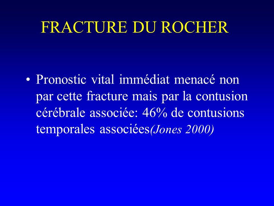 FRACTURE DU ROCHER Pronostic vital immédiat menacé non par cette fracture mais par la contusion cérébrale associée: 46% de contusions temporales assoc