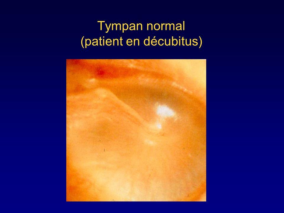 Tympan normal (patient en décubitus)