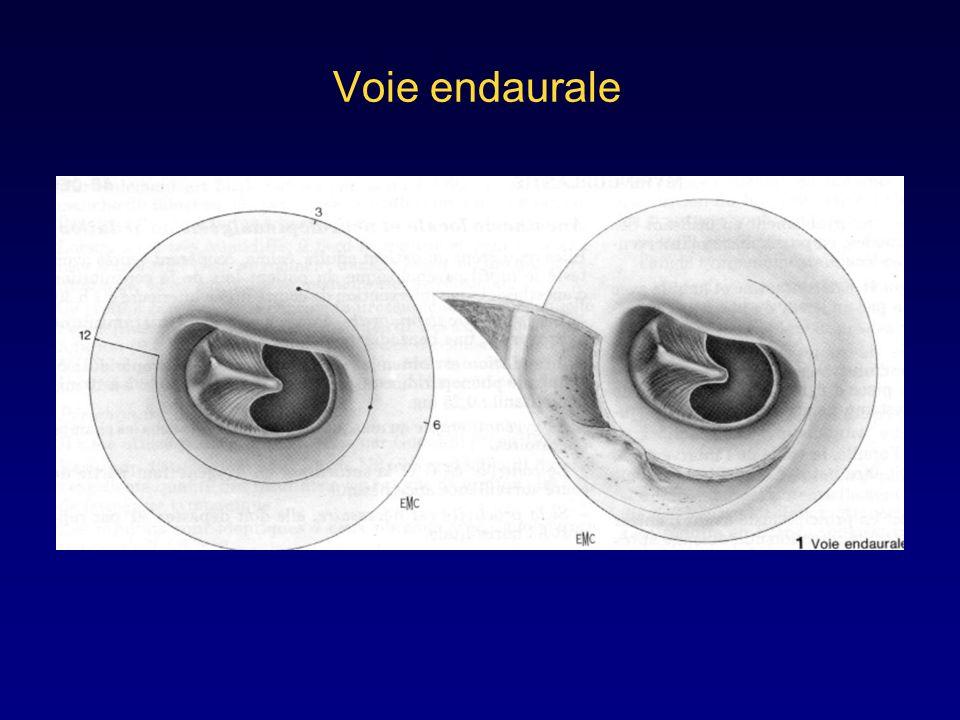 Voies d'abords de l'oreille moyenne u Voie du spéculum ( ou du conduit ) u Voie endaurale ou Shambeau u Voie postérieure