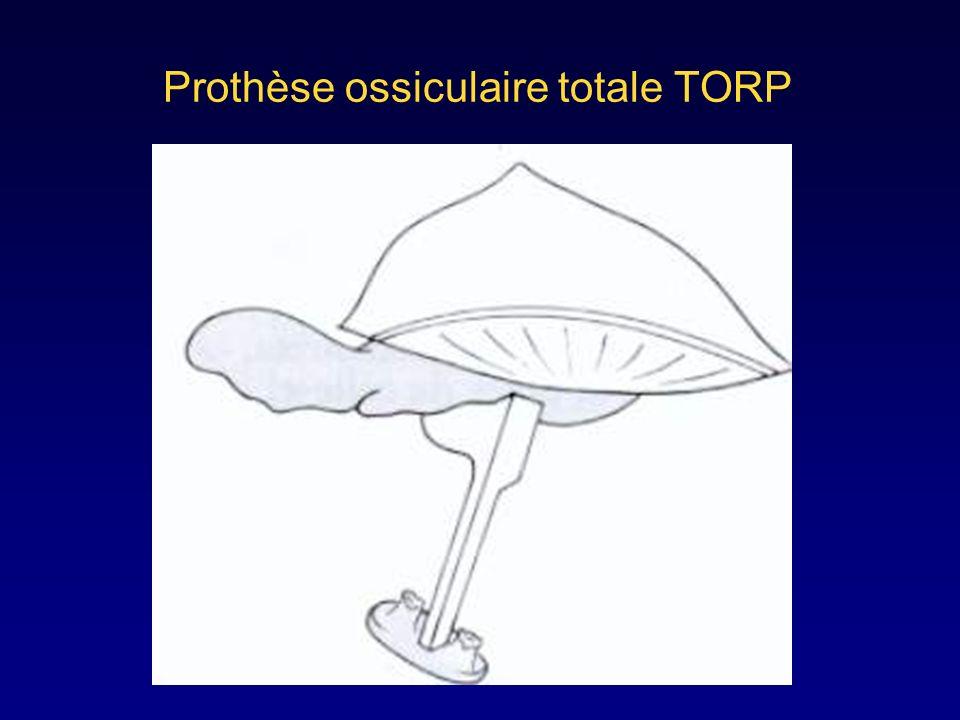 Prothèse ossiculaire partielle PORP