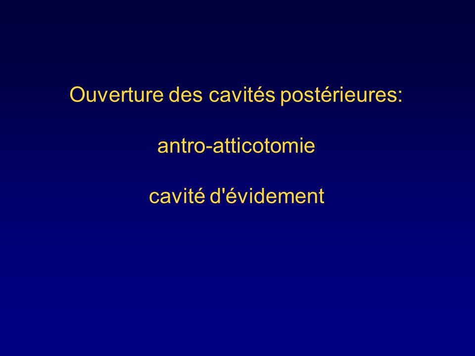 Ouverture des cavités postérieures: antro-atticotomie cavité d évidement