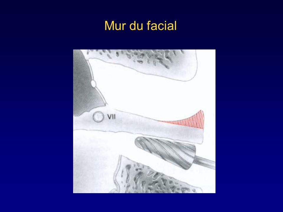 Ouverture des cavités postérieures: antro-atticotomie cavité d'évidement