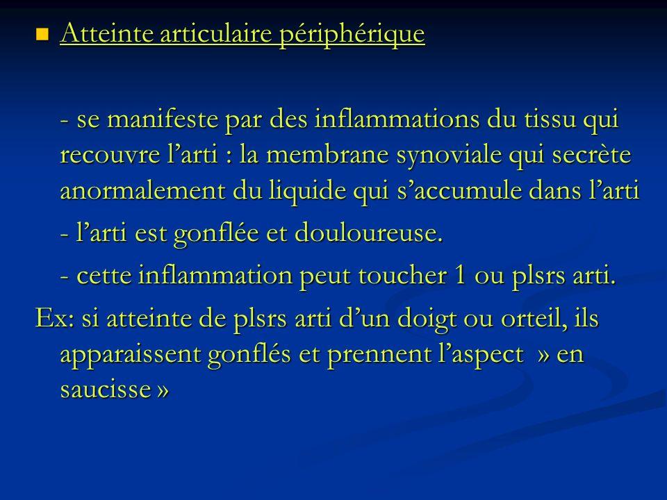 Atteinte articulaire périphérique Atteinte articulaire périphérique - se manifeste par des inflammations du tissu qui recouvre larti : la membrane syn