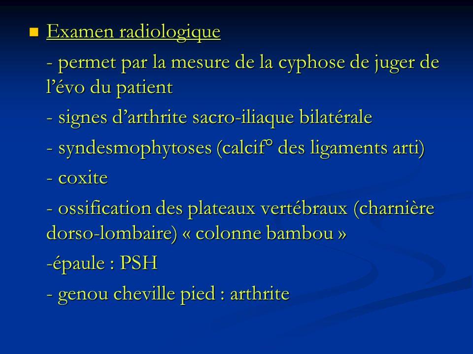 Examen radiologique Examen radiologique - permet par la mesure de la cyphose de juger de lévo du patient - signes darthrite sacro-iliaque bilatérale -