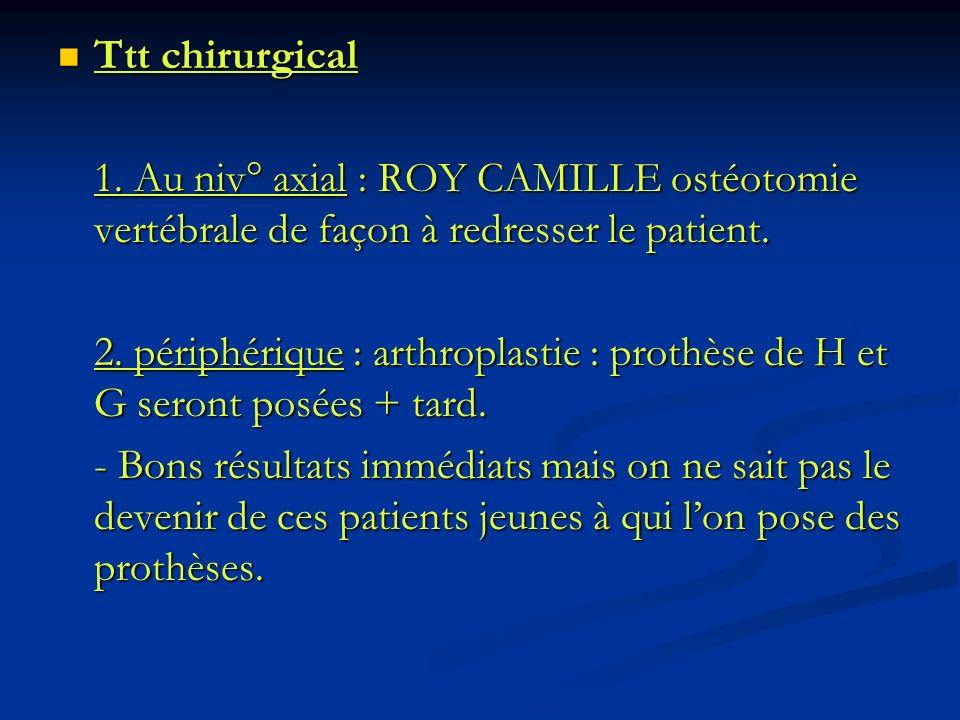 Ttt chirurgical Ttt chirurgical 1. Au niv° axial : ROY CAMILLE ostéotomie vertébrale de façon à redresser le patient. 2. périphérique : arthroplastie