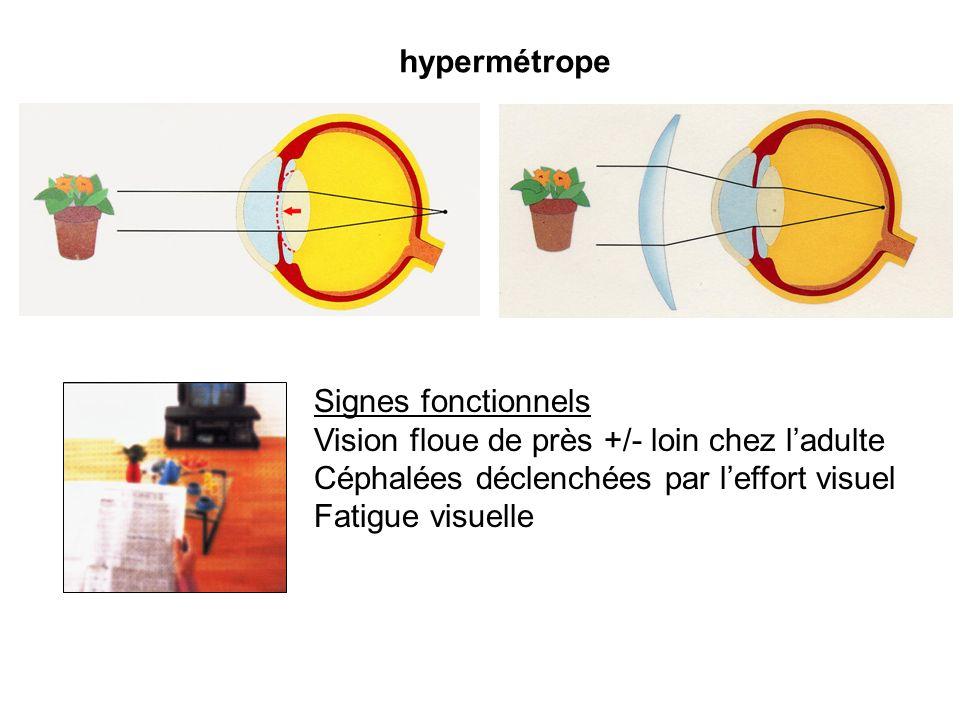 hypermétrope Signes fonctionnels Vision floue de près +/- loin chez ladulte Céphalées déclenchées par leffort visuel Fatigue visuelle