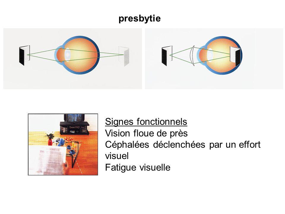 presbytie Signes fonctionnels Vision floue de près Céphalées déclenchées par un effort visuel Fatigue visuelle