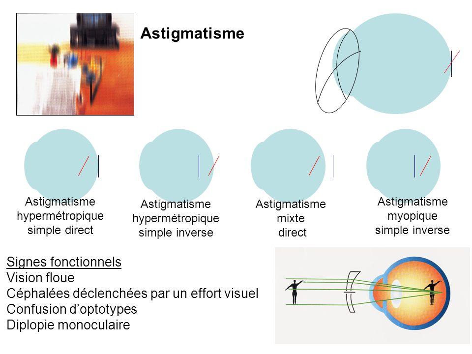 Astigmatisme hypermétropique simple direct Astigmatisme hypermétropique simple inverse Astigmatisme myopique simple inverse Astigmatisme mixte direct