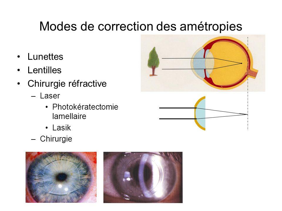 Modes de correction des amétropies Lunettes Lentilles Chirurgie réfractive –Laser Photokératectomie lamellaire Lasik –Chirurgie