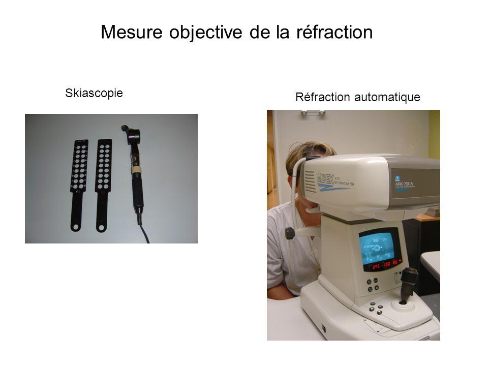 Mesure objective de la réfraction Skiascopie Réfraction automatique