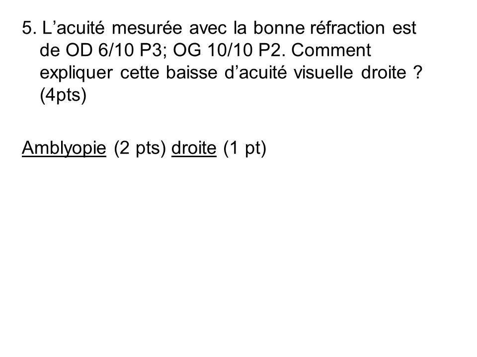 5. Lacuité mesurée avec la bonne réfraction est de OD 6/10 P3; OG 10/10 P2. Comment expliquer cette baisse dacuité visuelle droite ? (4pts) Amblyopie