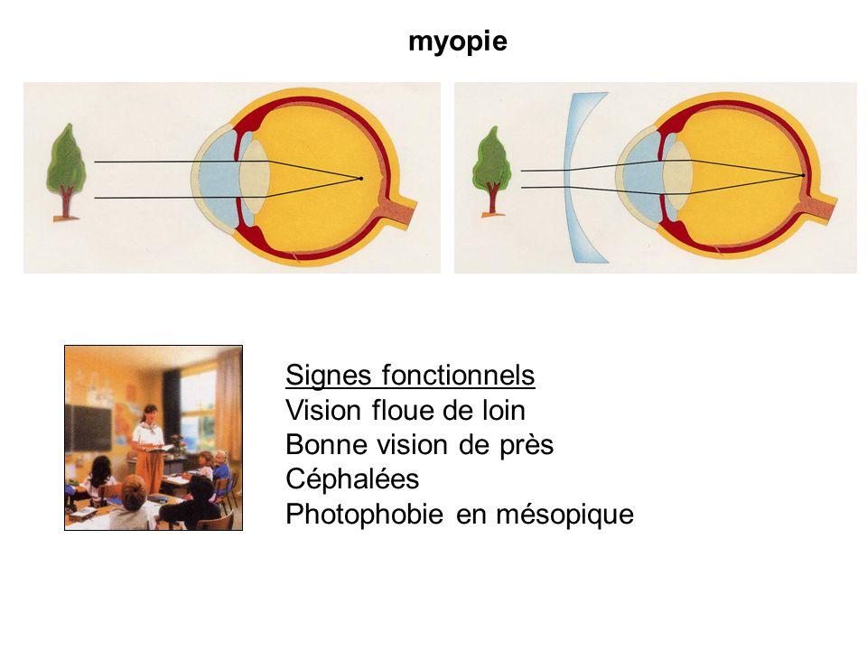 myopie Signes fonctionnels Vision floue de loin Bonne vision de près Céphalées Photophobie en mésopique