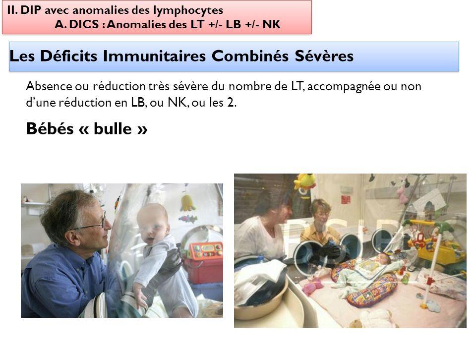 Les Déficits Immunitaires Combinés Sévères II. DIP avec anomalies des lymphocytes A. DICS : Anomalies des LT +/- LB +/- NK II. DIP avec anomalies des