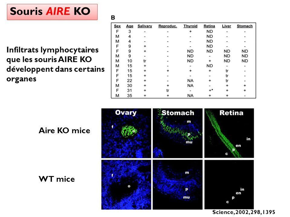 Souris AIRE KO Aire KO mice WT mice Science, 2002, 298, 1395 Infiltrats lymphocytaires que les souris AIRE KO développent dans certains organes