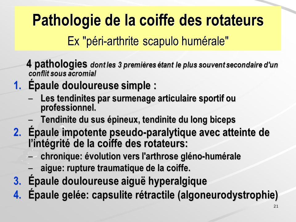 21 Pathologie de la coiffe des rotateurs Ex