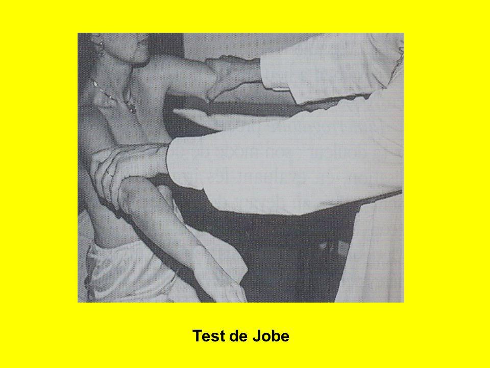 26 Test de Jobe