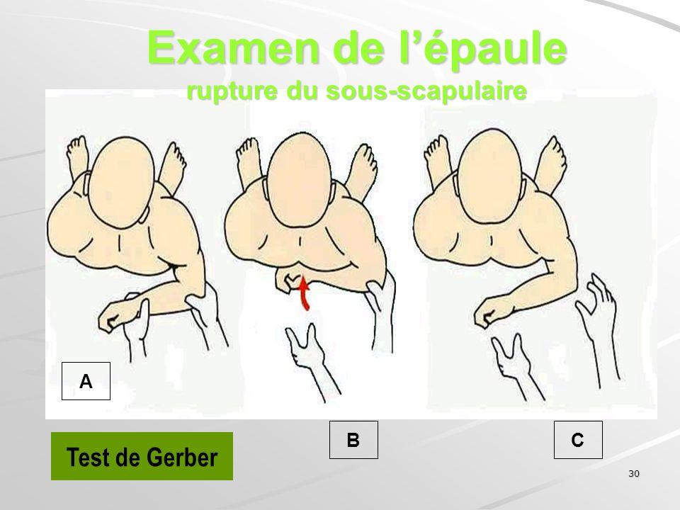 30 Test de Gerber A CB Examen de lépaule rupture du sous-scapulaire