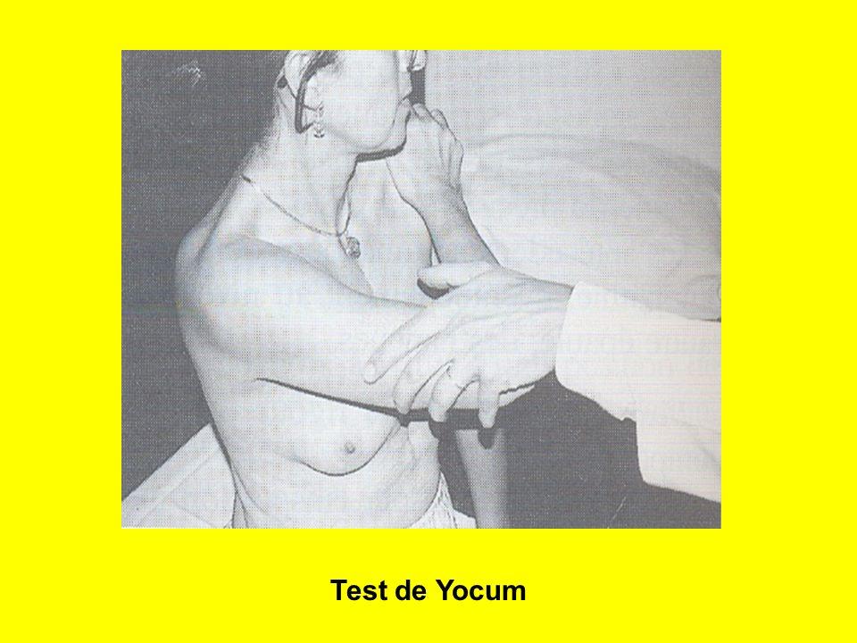 32 Test de Yocum