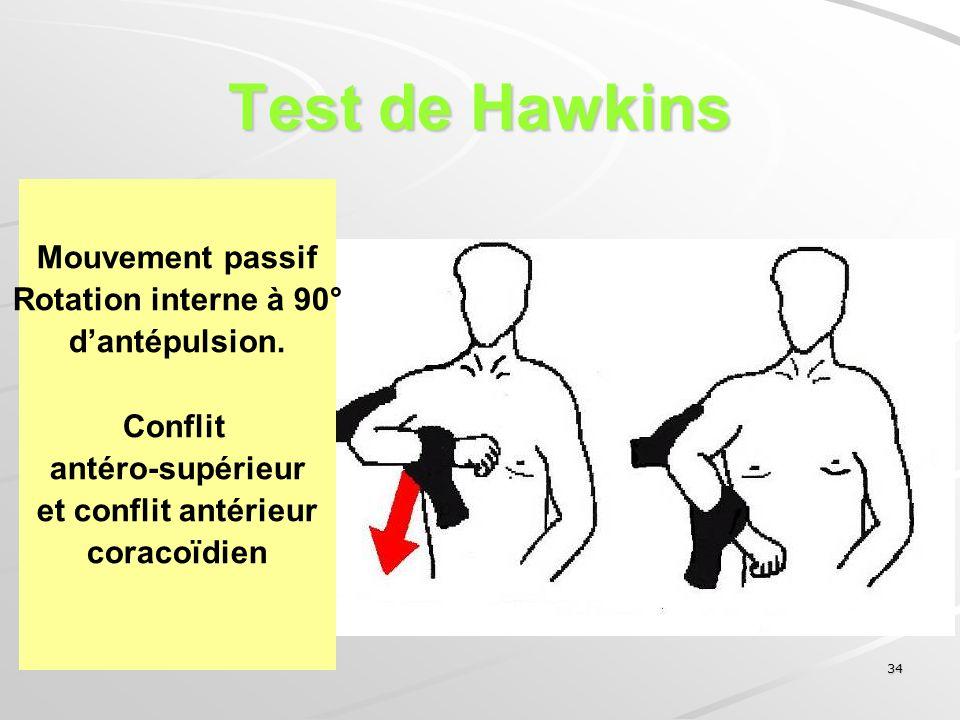 34 Test de Hawkins Mouvement passif Rotation interne à 90° dantépulsion. Conflit antéro-supérieur et conflit antérieur coracoïdien