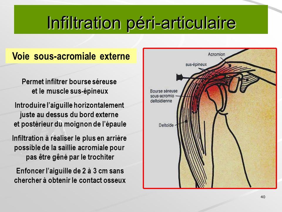 40 Infiltration péri-articulaire Voie sous-acromiale externe Permet infiltrer bourse séreuse et le muscle sus-épineux Introduire laiguille horizontale
