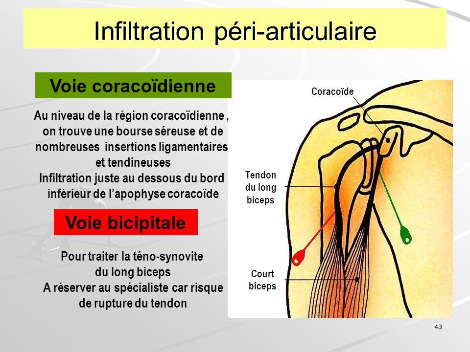 43 Infiltration péri-articulaire Voie coracoïdienne Au niveau de la région coracoïdienne, on trouve une bourse séreuse et de nombreuses insertions lig