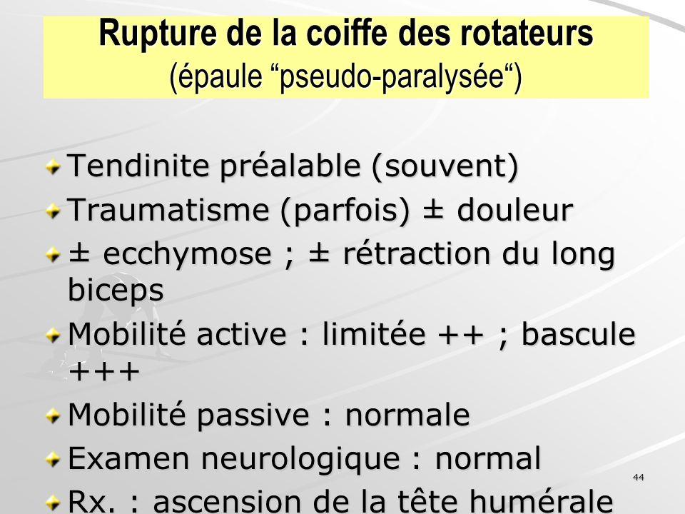 44 Rupture de la coiffe des rotateurs (épaule pseudo-paralysée) Tendinite préalable (souvent) Traumatisme (parfois) ± douleur ± ecchymose ; ± rétracti