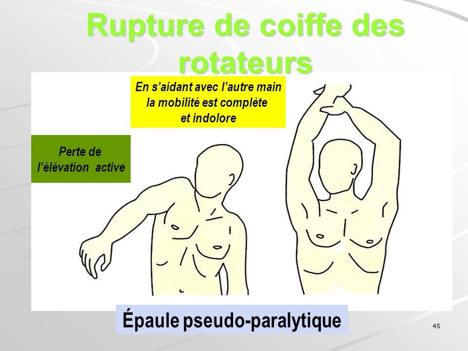 45 Perte de lélévation active En saidant avec lautre main la mobilité est complète et indolore Épaule pseudo-paralytique Rupture de coiffe des rotateu