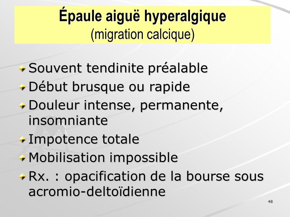 48 Épaule aiguë hyperalgique (migration calcique) Souvent tendinite préalable Début brusque ou rapide Douleur intense, permanente, insomniante Impoten