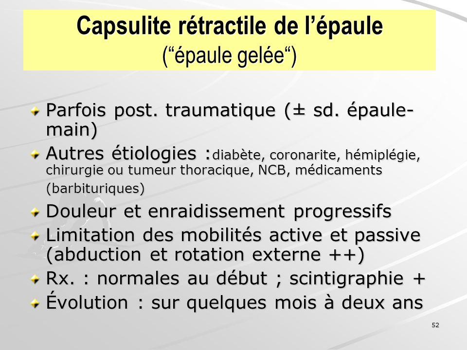 52 Capsulite rétractile de lépaule (épaule gelée) Parfois post. traumatique (± sd. épaule- main) Autres étiologies : diabète, coronarite, hémiplégie,
