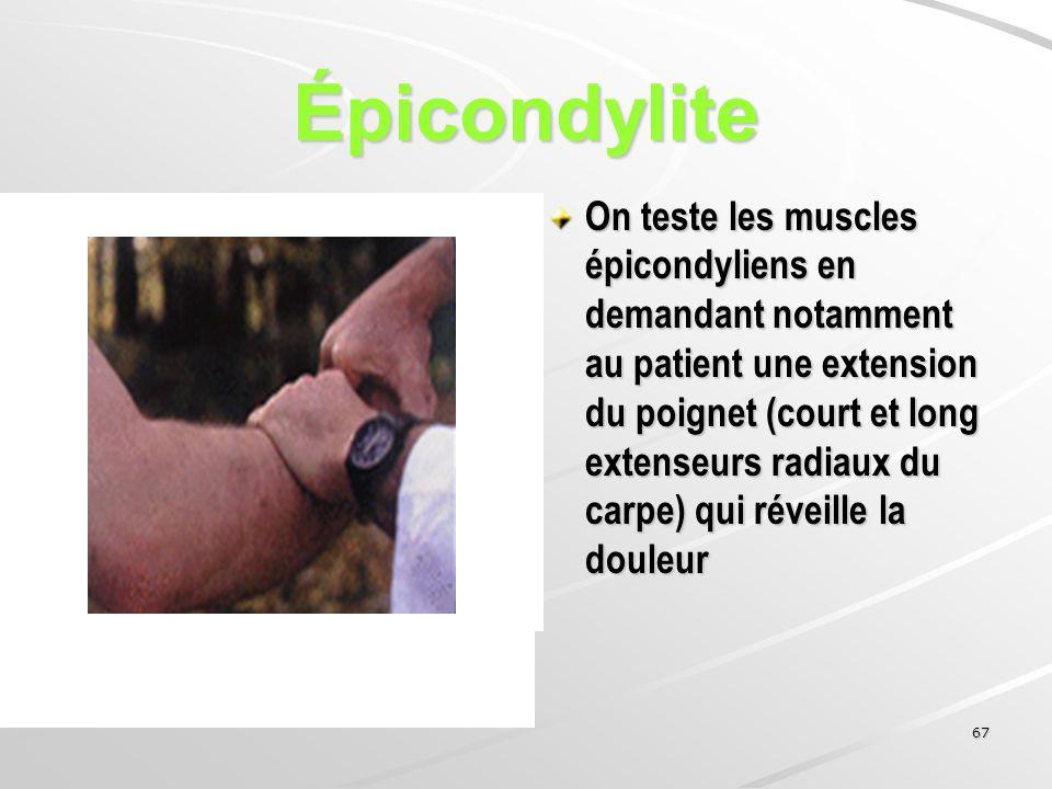67 Épicondylite On teste les muscles épicondyliens en demandant notamment au patient une extension du poignet (court et long extenseurs radiaux du car