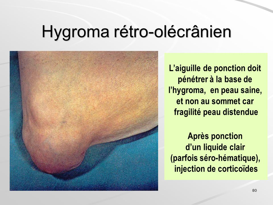 80 Hygroma rétro-olécrânien Laiguille de ponction doit pénétrer à la base de lhygroma, en peau saine, et non au sommet car fragilité peau distendue Ap