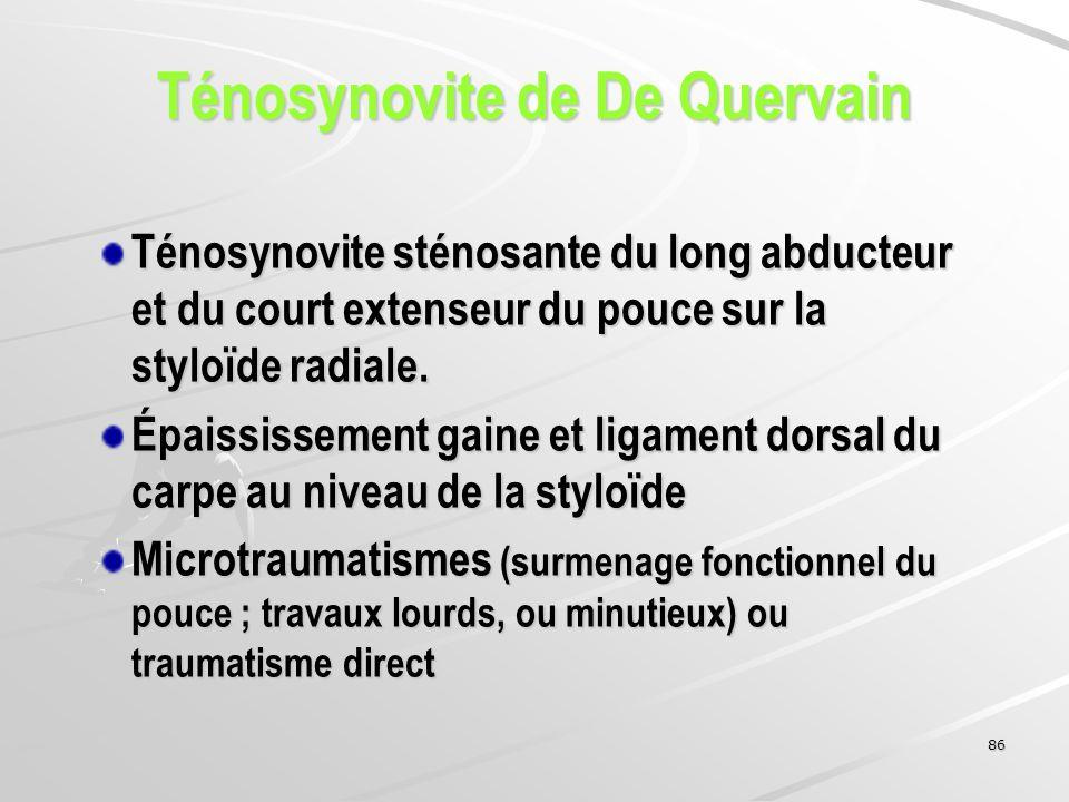 86 Ténosynovite sténosante du long abducteur et du court extenseur du pouce sur la styloïde radiale. Épaississement gaine et ligament dorsal du carpe