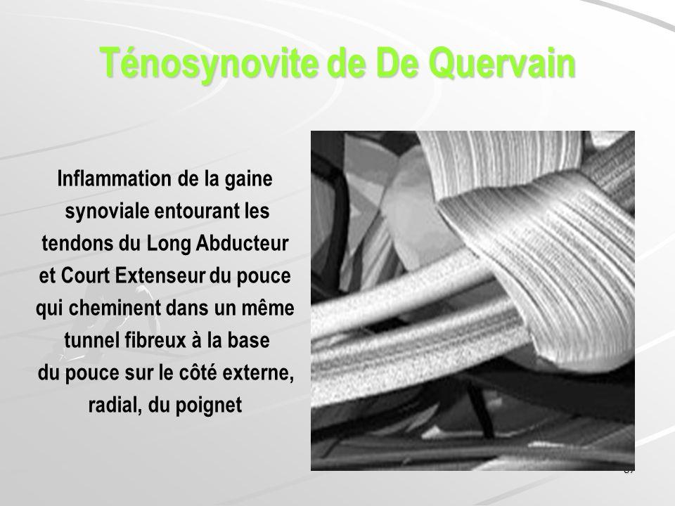 87 Ténosynovite de De Quervain Inflammation de la gaine synoviale entourant les tendons du Long Abducteur et Court Extenseur du pouce qui cheminent da