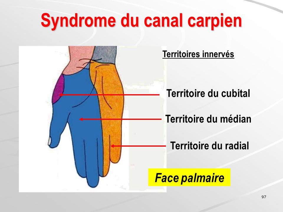 97 Territoire du médian Territoire du cubital Territoire du radial Syndrome du canal carpien Face palmaire Territoires innervés